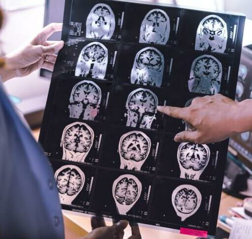Two people review a brain scan of a person with LATE dementia